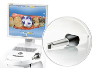 CERECチェアサイドソリューション   Sirona Dental